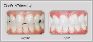 Teeth Whitening | Rancho Cucamonga Dentists | Best Dentist Rancho Cucamonga