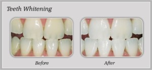 before_after_teeth_whitening04