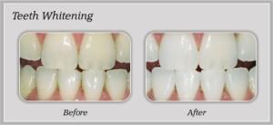 Teeth Whitening Service Rancho Cucamonga | Dentist In Rancho Cucamonga | Rancho Cucamonga Dentist