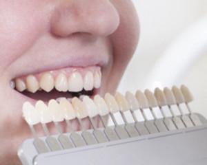 Teeth Whitening | Dentist In Rancho Cucamonga | Rancho Cucamonga Dentist