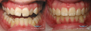 Clear Braces | Dentist In Rancho Cucamonga | Rancho Cucamonga Dentist