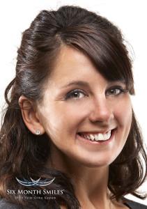 Clear Braces | Aesthetic Fillings | Dentist In Rancho Cucamonga | Rancho Cucamonga Dentist