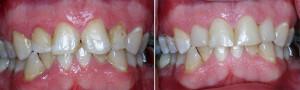 Aesthetic Fillings   Dentist In Rancho Cucamonga   Rancho Cucamonga Dentist