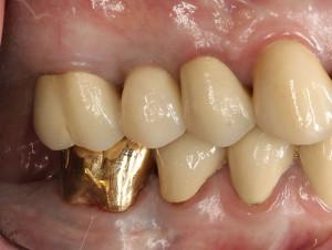 Dental Implants | Rancho Cucamonga Dentists | Best Dentist Rancho Cucamonga