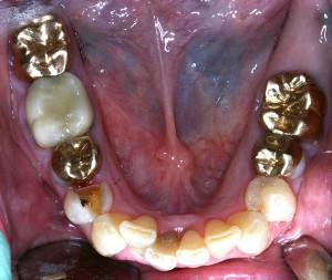 Rancho Cucamonga Dentists | Best Dentist Rancho Cucamonga