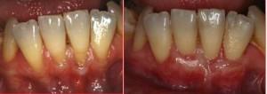 Gum Treatment   Dentist In Rancho Cucamonga   Rancho Cucamonga Dentist
