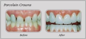 Crowns Teeth | Dentist In Rancho Cucamonga | Rancho Cucamonga Dentist