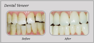 Veneer Service | Dentist In Rancho Cucamonga | Rancho Cucamonga Dentist