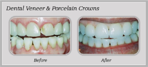 Veneer Services | Dentist In Rancho Cucamonga | Rancho Cucamonga Dentist