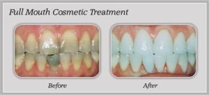 Cosmetic Dentist Rancho Cucamonga CA