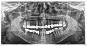 X-Ray | Dentist In Rancho Cucamonga | Rancho Cucamonga Dentist