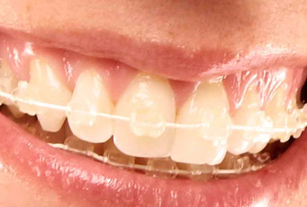 Essential Benefits Of Clear Braces For Adults