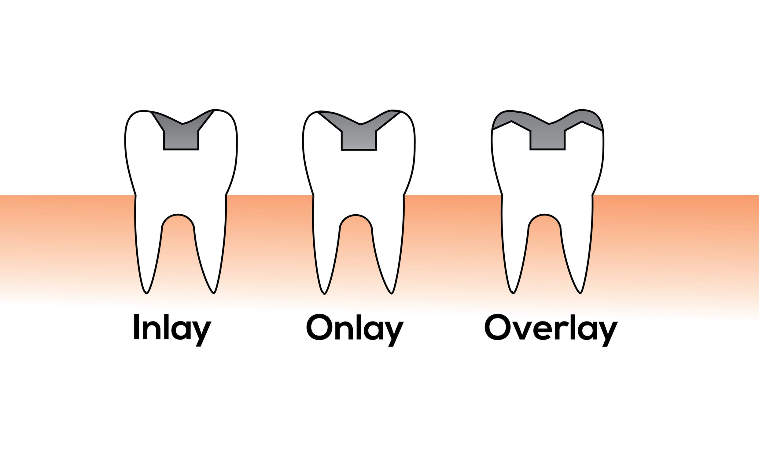 Dental Crowns | Inlay Outlay Best Rancho Cucamonga Dentist