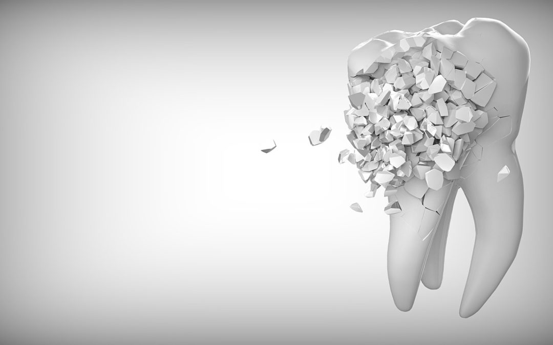 Learn How To Identify A Cavity