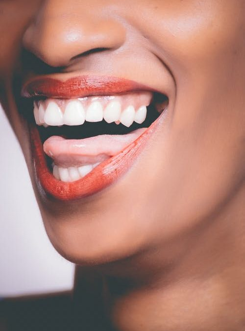 After Whitening Treatment – Rancho Cucamonga Dentist