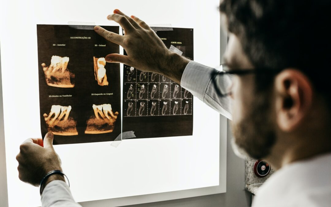 Learn What To Do When You Have To Get Dental X-Rays